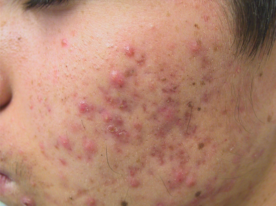 1d1f1b6c605f Acne Types  Acne Types - Acne Conglobata  Acne That Affects Men
