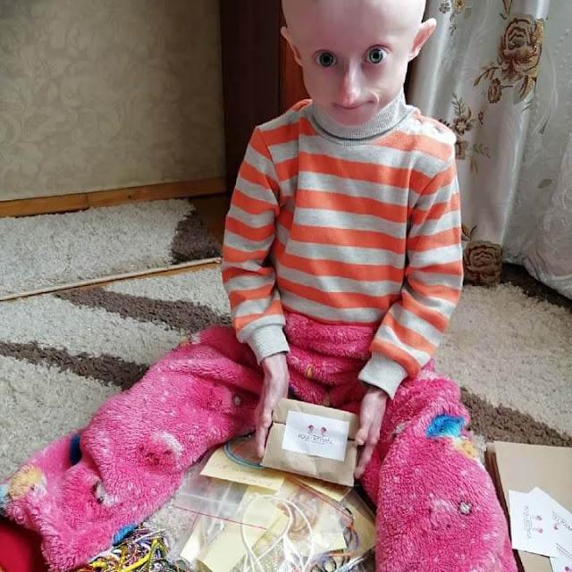 Irina Khimich, criança morreu de velhice