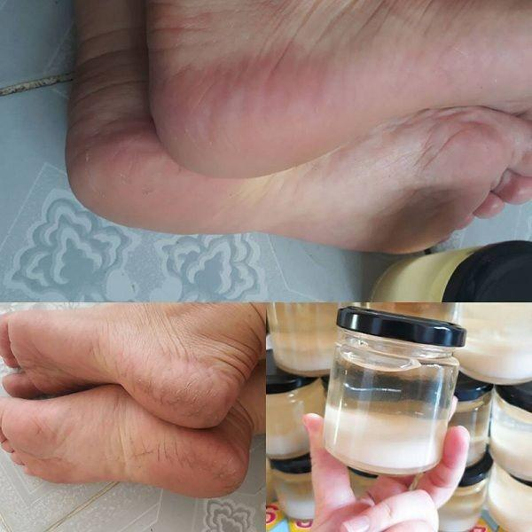 Treating heel crack with python oil at home