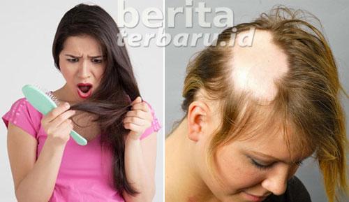 mengatasi kebotakan rambut dengan bawang putih
