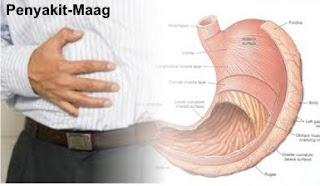 Obat sakit perut dan kembung