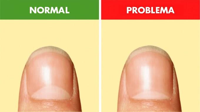 ¿Qué significa la forma de media luna en tus uñas?