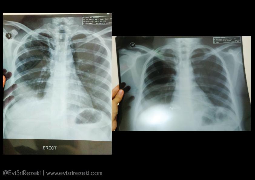 Cerita Tentang TBC Usus Bagian Ketiga