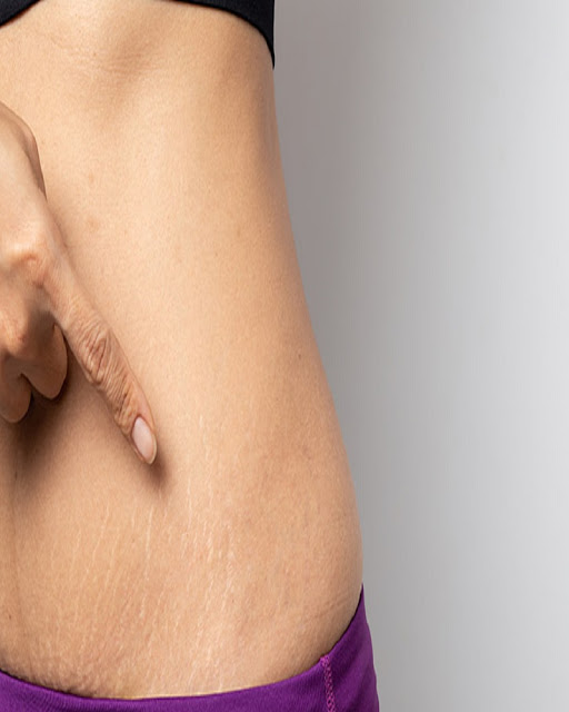 Woman-Pointing-At-Her-Stretch-Marks