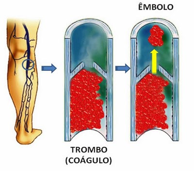 A formação de coágulos nas veias pode levar a trombose