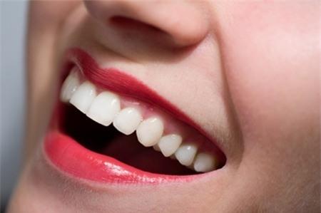 5 mẹo khiến hàm răng trắng sáng tự nhiên