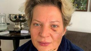 Joice Hasselmann (PSL-SP)  nega ter sido agredida pelo marido