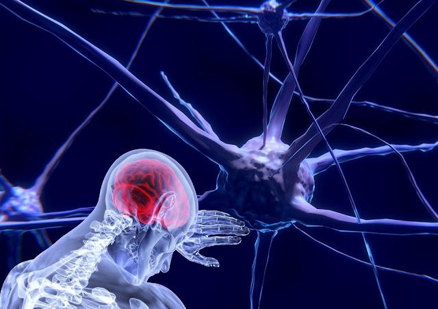 تمدد الأوعية الدموية الدماغية الأعراض والأسباب والعلاج