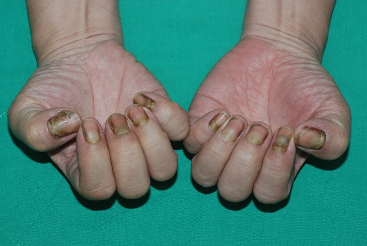 黃指甲症候群 (yellow nail syndrome)