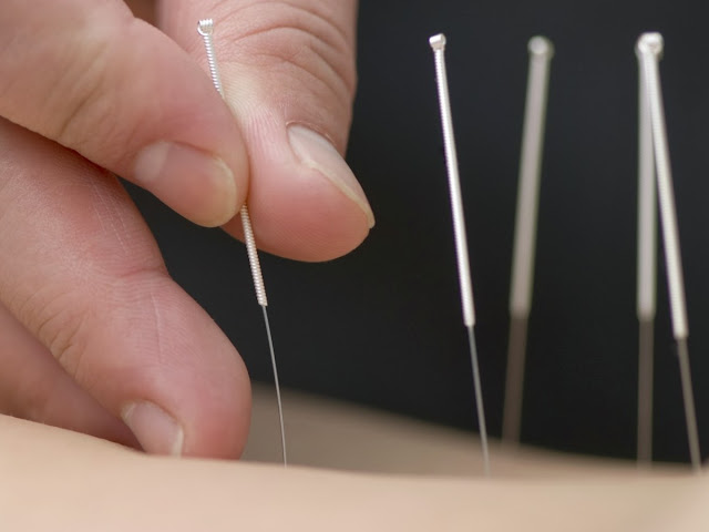 Reduce Heat Sensation Due to Menopause With Acupuncture