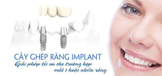 cay-ghe-rang-implant-nha-khoa-uy-tin-nha-khoa-thuan-kieu-2016