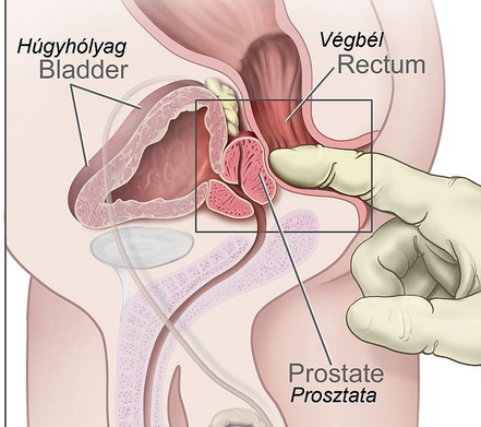 boggy prostate on dre A legjobb gyakorlat a prosztatitis