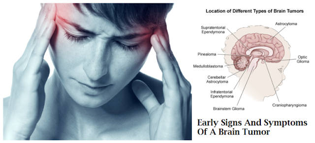 Symptoms of Brain Tumor