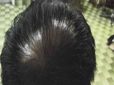 Botak Usia Muda