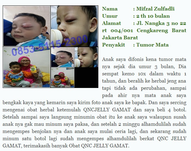 Testimoni dan Review Jelly Gamat QnC