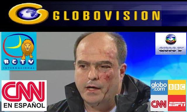 Resultado de imagen de MANIPULACIÓN MEDIATICA CONTRA Venezuela: Globovisión