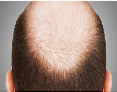 Why only men become 'Ujda Chaman', why women also have hair loss problem