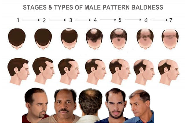 Male Pattern Baldness Types and Stages
