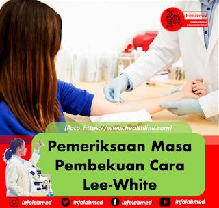 Pemeriksaan Masa Pembekuan Cara Lee-White