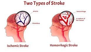 2 type stroke