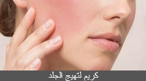كريم لتهيج الجلد
