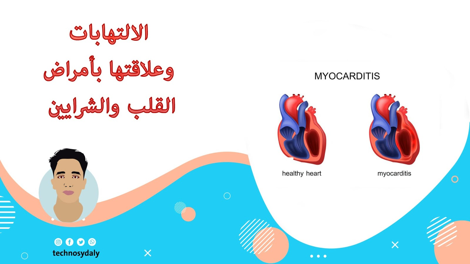 12معلومة حول الالتهابات وعلاقتها بأمراض القلب والشرايين