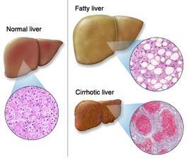 Cara Mengobati Penyakit Liver Tanpa Efek Samping