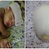 Jangan Panik dan Langsung Kasih Obat Kimia Saat Anak Panas Deman,Karena Hanya Dengan Menggunakan Telur Rebus Efektif Turunkan Demam Anak! Begini Cara-Nya..