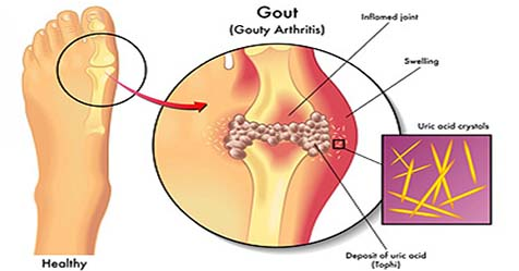 Gout Disease Causes Symptoms and Treatments