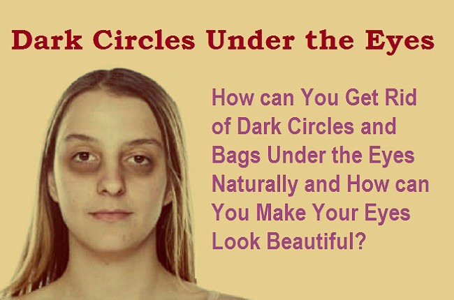 Dark circles under the eyes