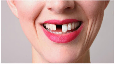 How To Make Your Teeth Grow In Just Few Weeks Awesome Awesome!! How To Brand Your Teeth Grow Inward Only Few Weeks
