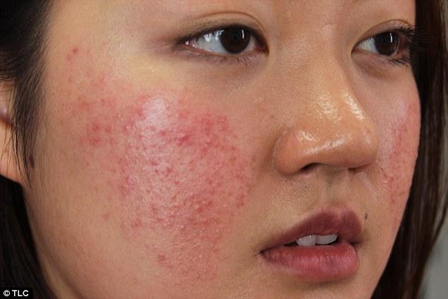 Da bị nổi mụn ửng đỏ bong tróc sau khi dùng mỹ phẩm