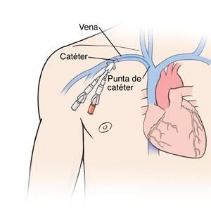MEDICINA CATETER VENOSO CENTRAL