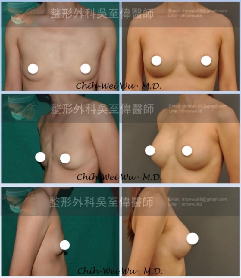 ⬆️小A罩杯隆乳案例,接受胸下緣下切口絨毛面果凍矽膠隆乳