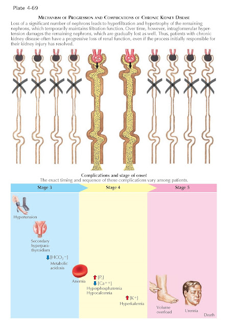 MECHANISM OF PROGRESSION AND COMPLICATIONS OF CHRONIC KIDNEY DISEASE