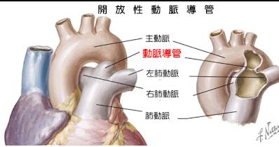 動脈導管為一條連接主動脈及肺動脈的血管
