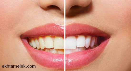علاج أصفرار الأسنان طبيعيا