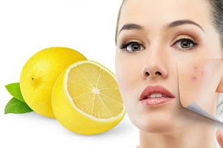 Lemon juice for acne scars on face