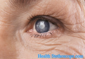 Cataract: Definition, Symptoms and Diagnosis