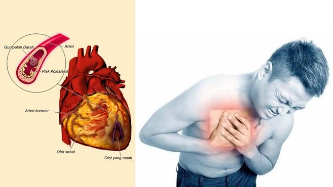 obat-jantung-koroner-di-apotik