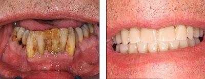 Gigi yang buruk akibat tidak dirawat kembali bersih dan putih
