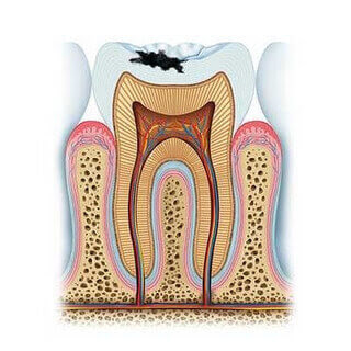 dişlerin çürümesi