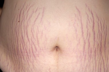 5 Remedy For Treating Stretch Marks At Home