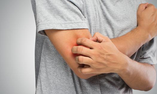 Yang Harus Dilakukan Ketika Alergi