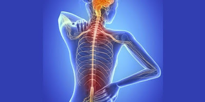 Trastorno neurológico esclerosis múltiple
