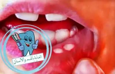 اسباب قرح الفم المتكرره, اعراض قرح الفم المتكرره, علاج قرح الفم المتكرره, علاج قرح الفم المتكرره طبيا, علاج قرح الفم المتكرره بوصفات منزلية
