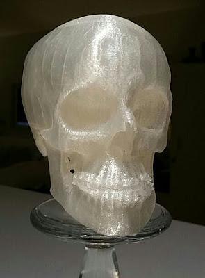 In 3D hộp sọ người từ dữ liệu chụp cắt lớp máy tính