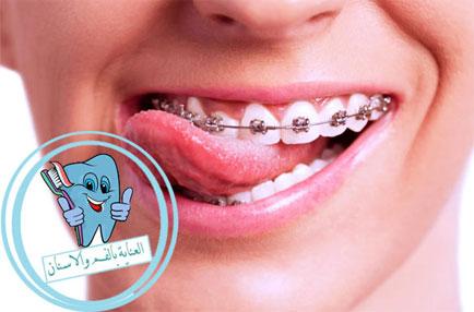 الوان التقويم الاسنان