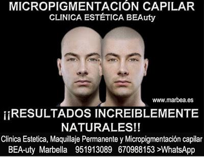Micropigmentaci�n capilar Sevilla en Clinica Est�tica Marbella