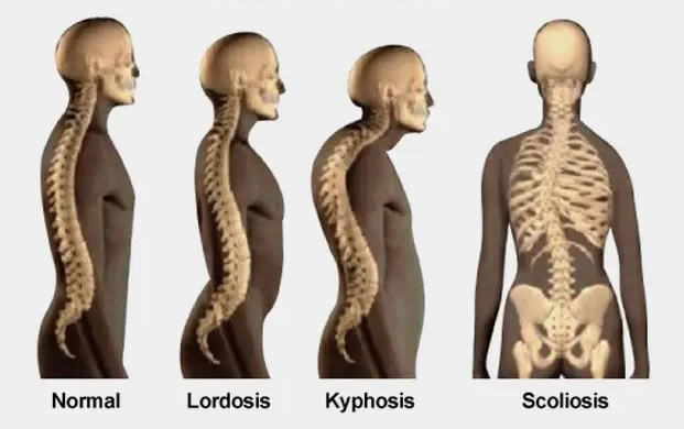 kelainan tulang, penyakit tulang, penyebab, pengertian, lordosis, kifosis, skoliosis, osteoporosis, rematik, polio, rakitis, ipa, pelajaran sekolah